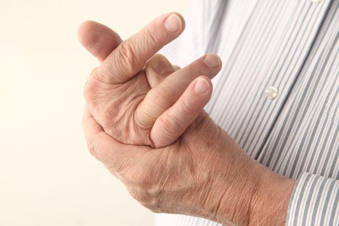 Симптоми артриту пальців рук і ніг