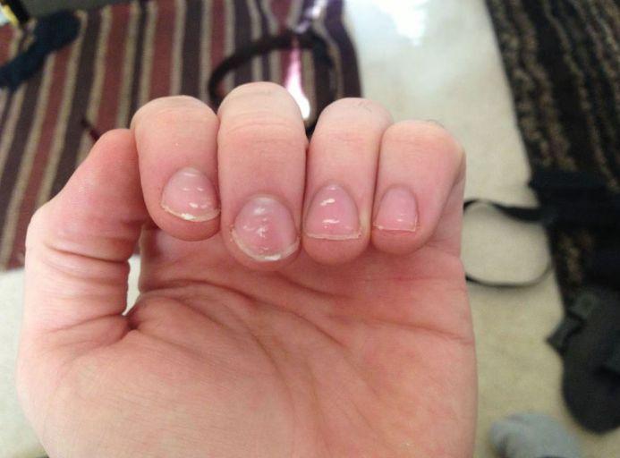 Чому білі плями на нігтях?