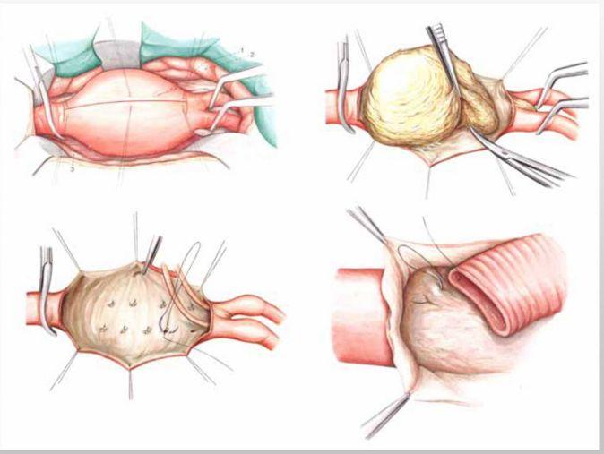 Типи аневризми черевної аорти