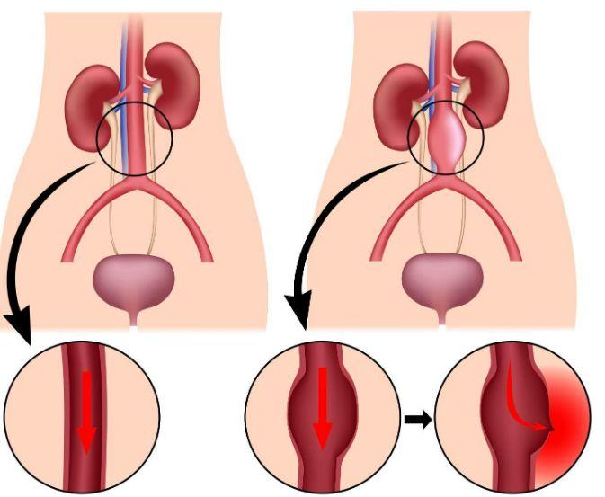 Аневризма аорти: причини