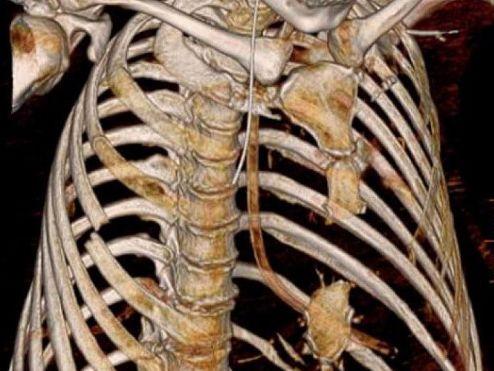 Перелом грудини: лікування