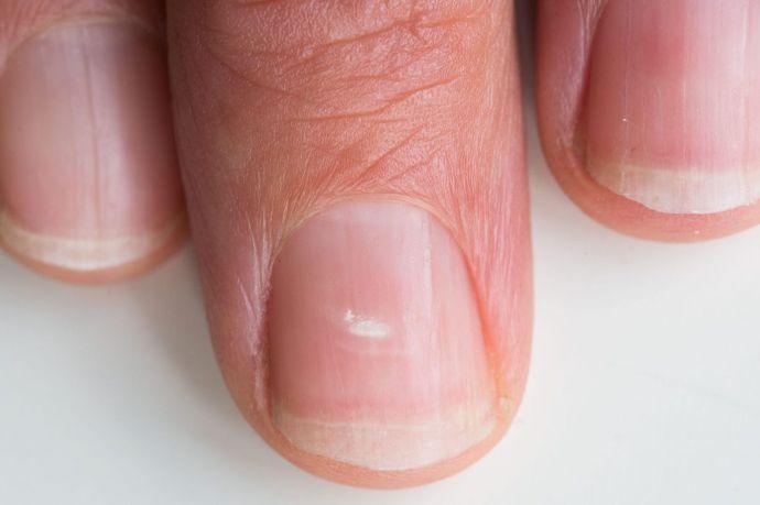 Білі і темні смужки на нігтях