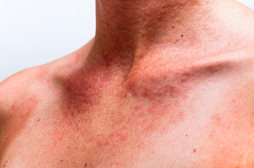 Алергічна кропив'янка