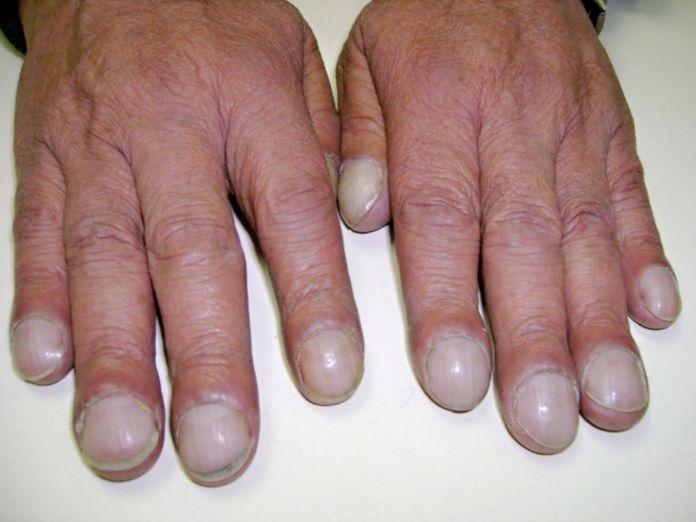 Виправлення врослого і деформованого нігтя