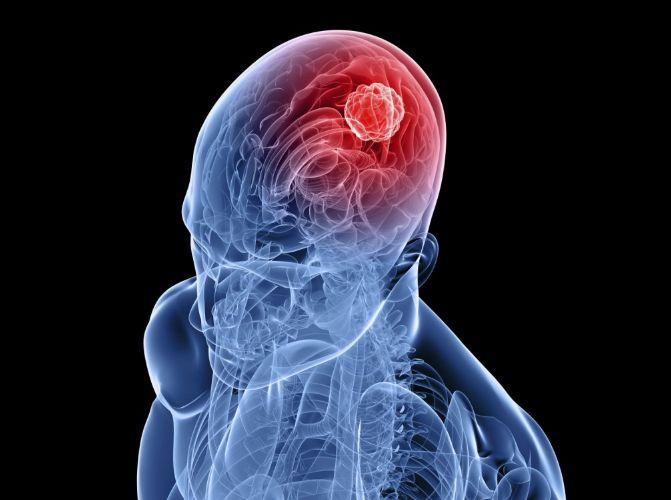 Доброякісна пухлина головного мозку