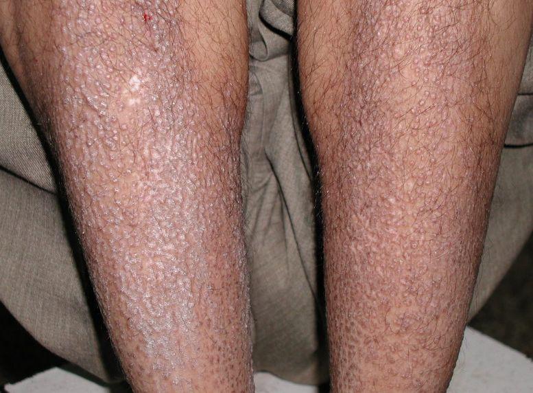 Амілоїдоз шкіри: причини та симптоми