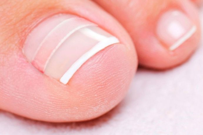 Деформація нігтів