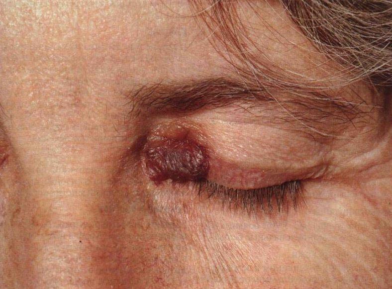 Амілоїдоз шкіри - що робити