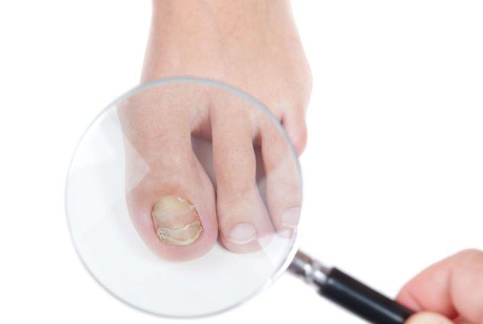 Чому відбувається деформування нігтя?