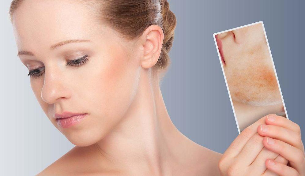 Амілоїдоз шкіри