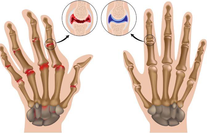 Артрит пальців і кистей рук