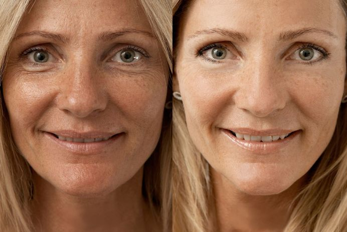 Ефективне омолодження обличчя