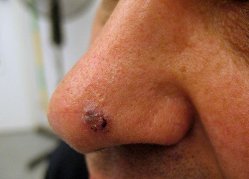 Базаліома: симптоми та причини