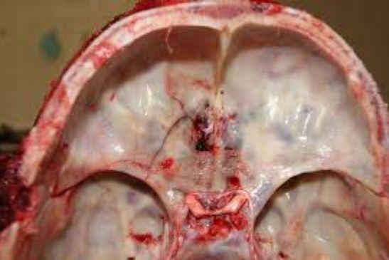 Кільцеподібний перелом основи черепа