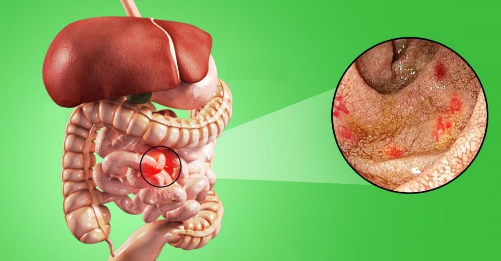 Захворювання кишечника