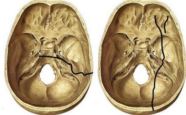 Перелом склепіння та основи черепа