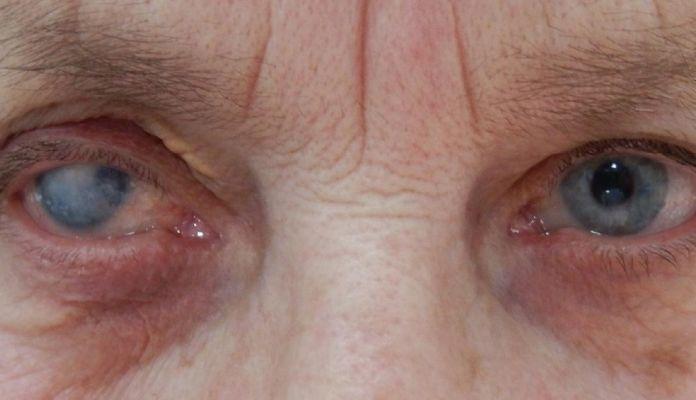 Більмо на оці у людини - причини