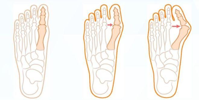 Симптоми вальгусной стопи