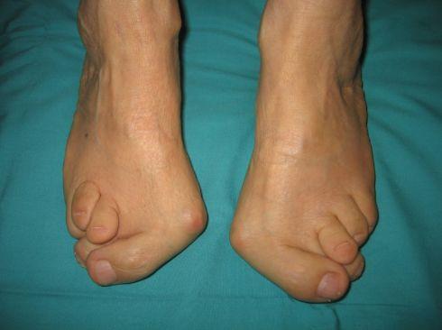 Лікування вальгусной деформації стопи