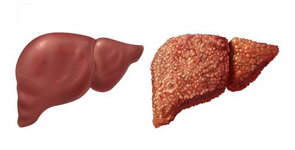 Цироз печінки: причини, симптоми