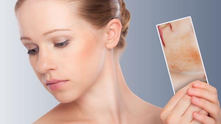 Як прибрати почервоніння з обличчя?