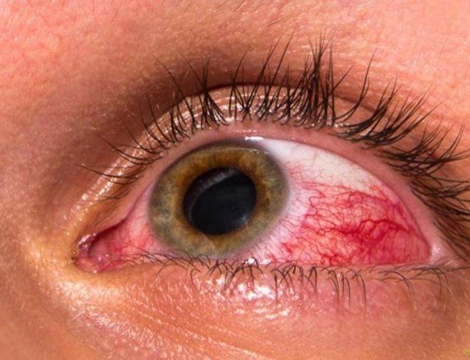 Глаукома - поняття, види