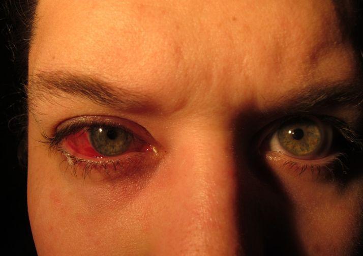 Що таке глаукома і які її симптоми
