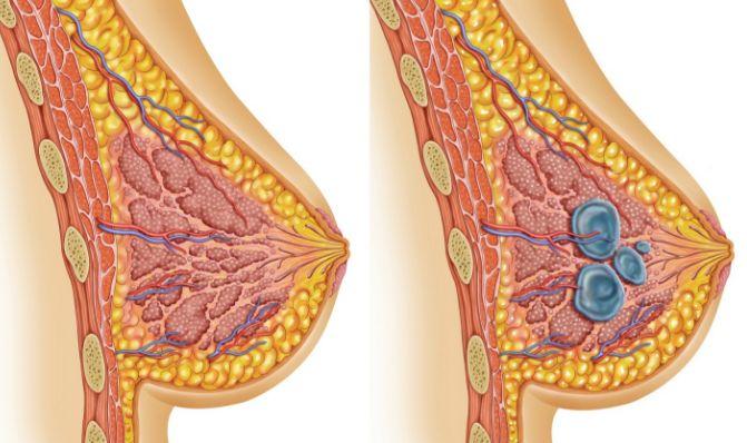 Причини утворення кіст у молочній залозі