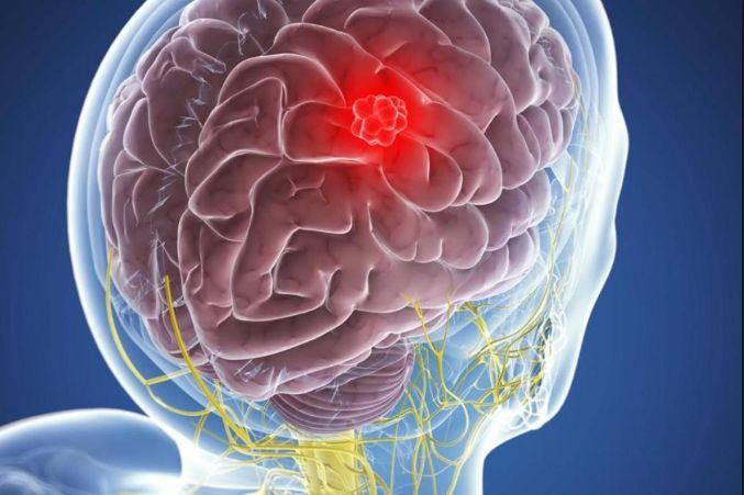 Абсцес головного мозку - симптоматика