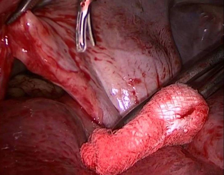 Дефект діафрагми - після травми