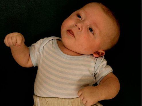 Вроджена м'язова кривошия у новонародженого
