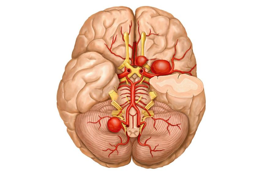 Аневризма головного мозку: методики діагностики