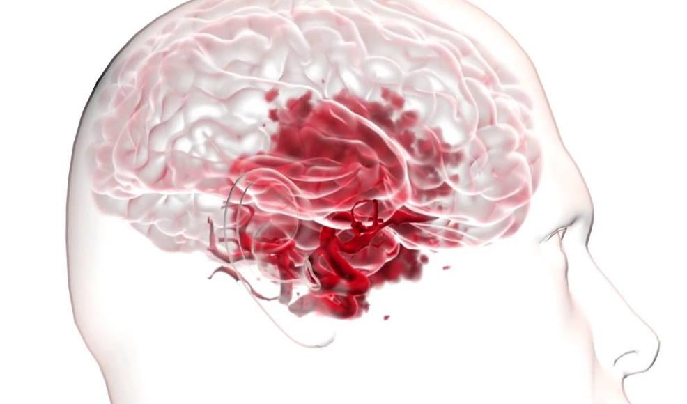 Розрив аневризми мозку