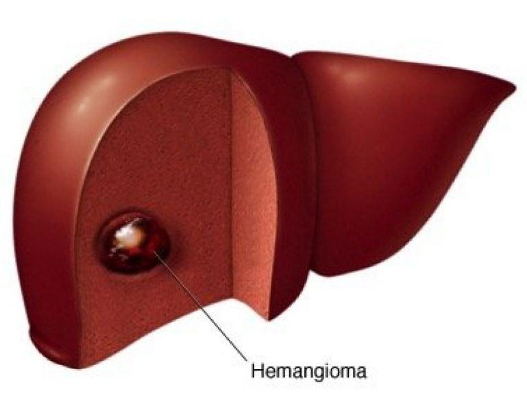 Лікування гемангіоми печінки
