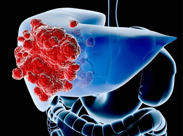 Гемангіома печінки - причини і симптоми