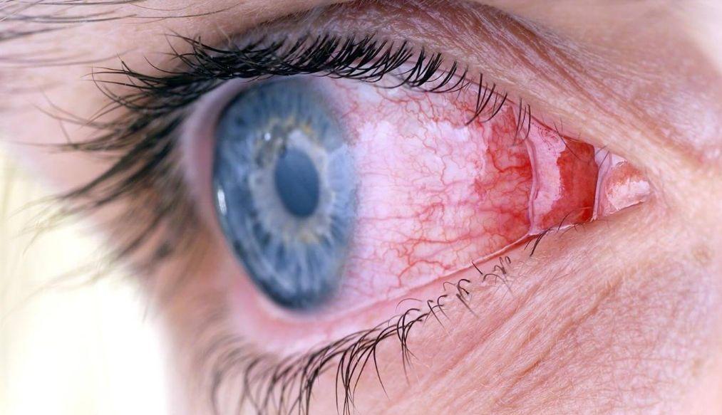 Алергічний кон'юнктивіт: симптоми і лікування