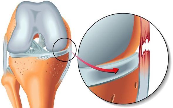 Як надати першу допомогу і діагностувати вивих коліна