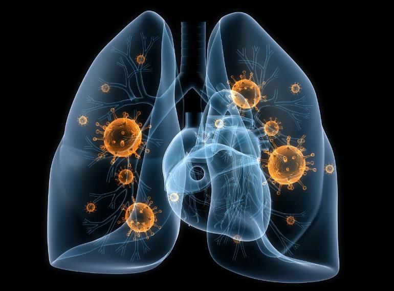 Вірусна пневмонія: симптоми і лікування у дорослих
