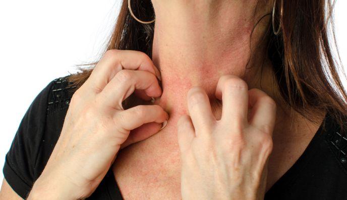Які симптоми алергії на алкоголь