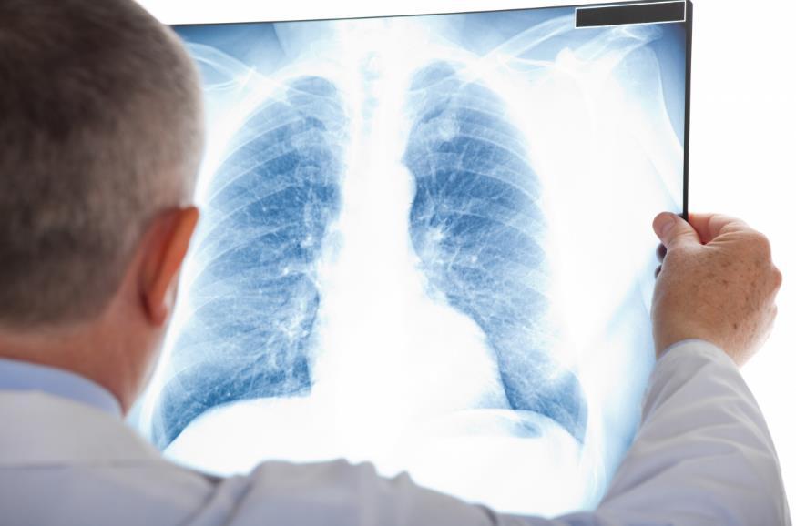 Як відрізнити пневмонію від грипу та ГРВІ