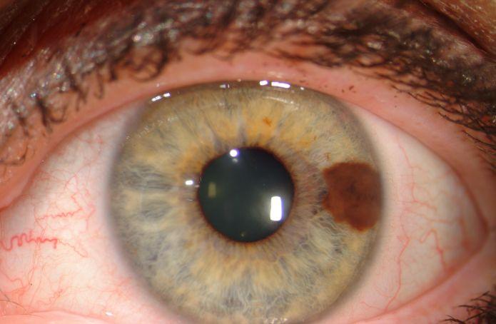 Меланома ока: симптоми