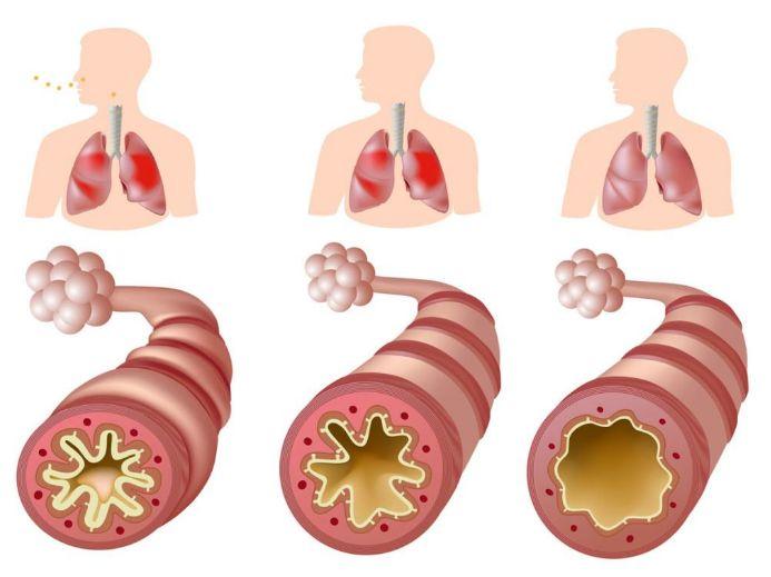 Набряк горла: симптоми та лікування