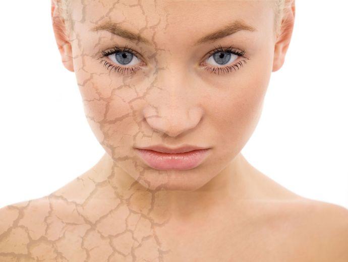 Алергія на косметику: як проявляється?