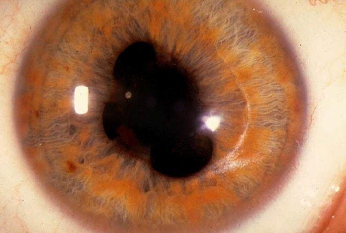 Увеальна меланома ока