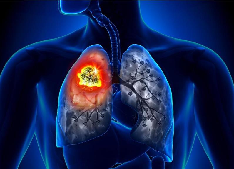 Лікування раку легені