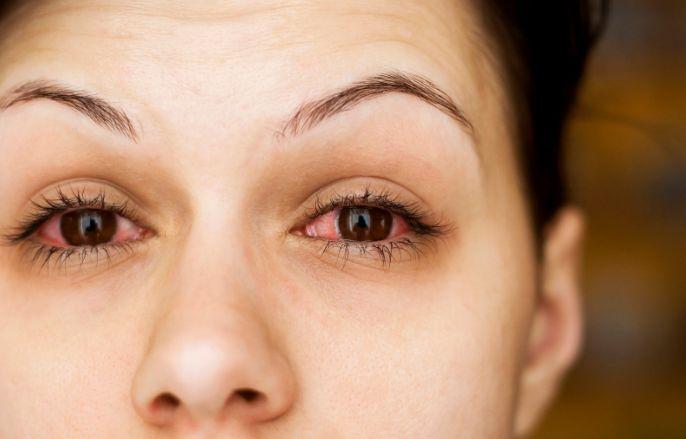 Алергія від косметики на повіках