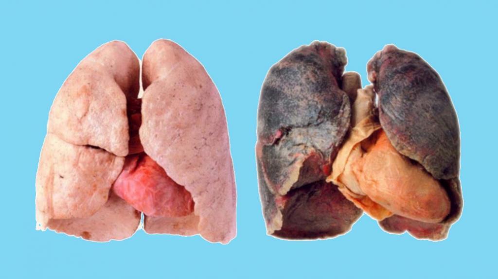 Здорові легені та хворі на рак
