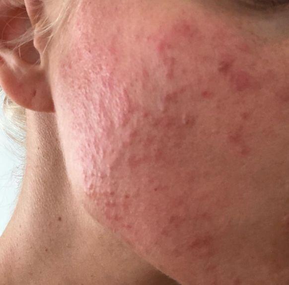Алергія на крем для обличчя