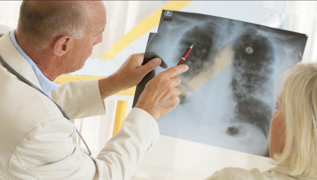 Перші ознаки раку легенів