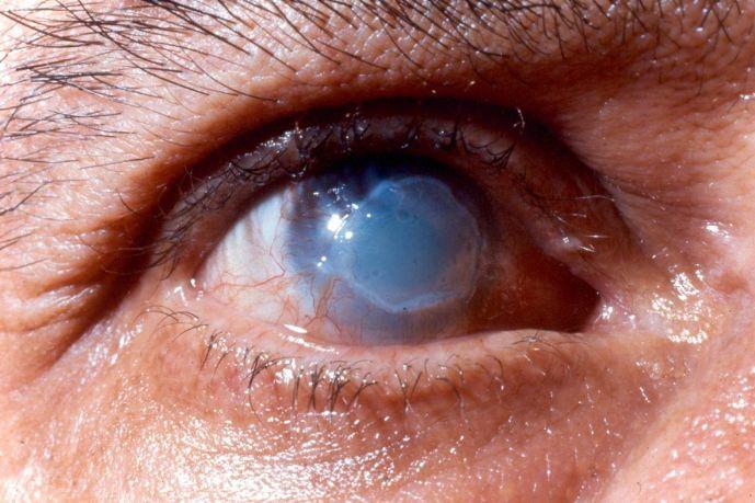 Хімічний опік ока